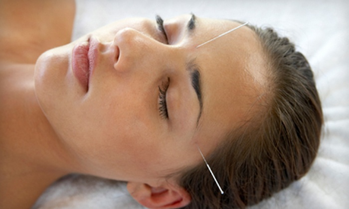 Chantaal Lebay L.Ac at Alternative Health and Well Being - Redondo Beach: Acupuncture Services from Chantaal Lebay L.Ac at Alternative Health and Well Being in Redondo Beach (Up to 71% Off). Three Options Available.