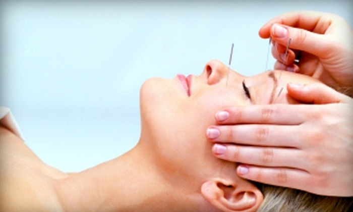 Acupuncture Center - West Omaha: $39 for a Traditional Chinese Acupuncture Treatment at Acupuncture Center ($120 Value)