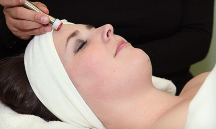 Kalologie Medspa - Lake Pointe: One, Three, or Five DermaSweep Microdermabrasion Facial Treatments at Kalologie Medspa in Sugar Land (Up to 65% Off)