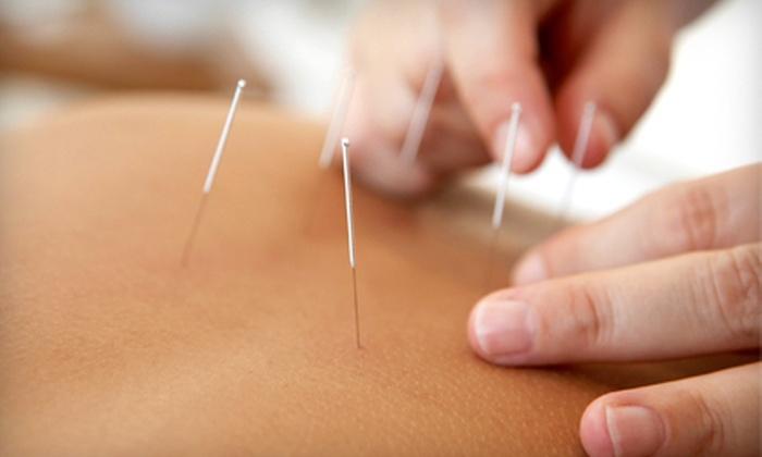 Gadar Oriental Medicine - Acupuncture Sarasota: $49 for an Acupuncture Package at Gadar Oriental Medicine in Sarasota (Up to $145 Value)