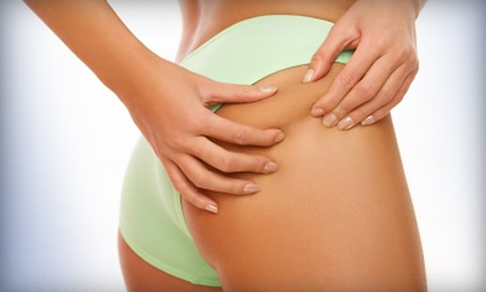 Le'Vent - Mesa Hills: $49 for a One-Hour LipoMax RF Body-Molding Treatment at Le'Vent ($100 Value)