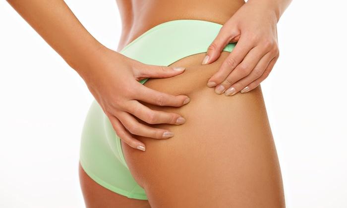 New Life Wellness & Skincare - San Antonio: Two, Four, or Six Lipo-Light Treatments with Anti-Cellulite Body Wraps at New Life Wellness & Skincare