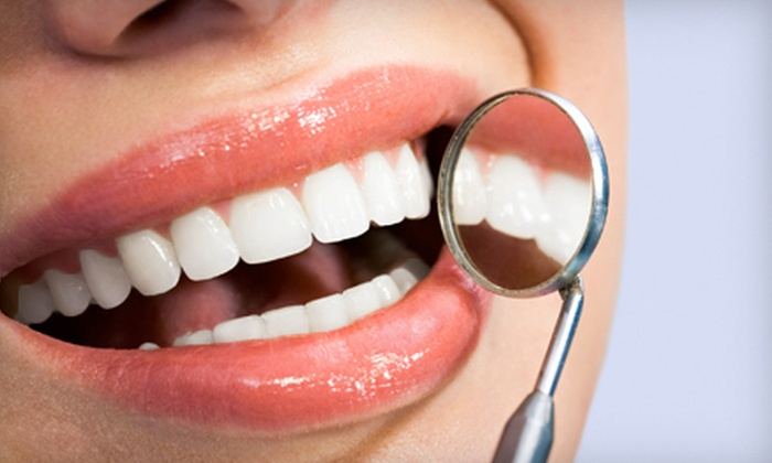 Pearly Whites - Central St. Boniface: $75 for Laser Teeth Whitening at Pearly Whites ($149.99 Value)