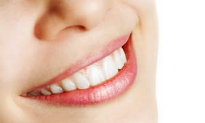 Alan L. Frame, D.D.S.: $39 for a $1500 Credit Towards Invisalign at Alan L. Frame, D.D.S.