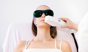 Elite Medspa and Wellness: Six LHR Sessions on a Small, Medium, or Large Area at Elite Medspa & Wellness (Up to 92% Off)
