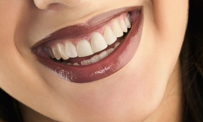 B Dazzling Beauty - Orange: $69 for $150 Worth of Cosmetic Teeth Whitening at B Dazzling Beauty