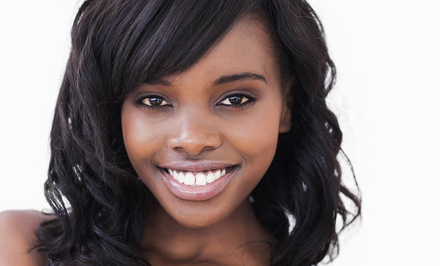 $59 for In-Office Spa Dent Teeth Whitening at Hintonburg Dental Hygiene ($149 Value)