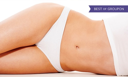 $245 for Six Pain-Free Laser Hair-Removal Treatments at Spa 810 ($1,230 Value)