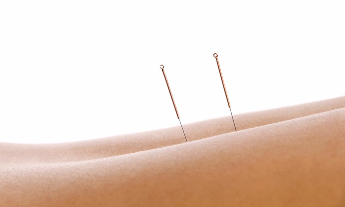 Central Sun Healing - Oswego: An Acupuncture Treatment at Central Sun Healing (38% Off)