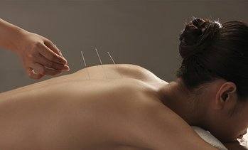 Shiatsu massage en acupunctuur