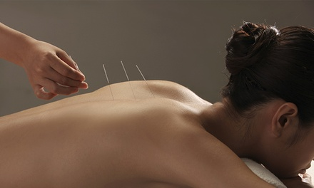 One or Three Acupuncture Sessions at Asula Wellness Center (Up to 66%Off)