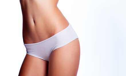 Cellulite ALMA Laser Treatment