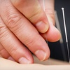 Up to 72% Off Acupuncture