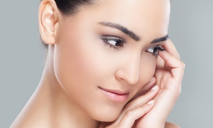 Reverie Day Spa & Wellness Center: One or Three Microneedling Treatments at Reverie Day Spa & Wellness Center (Up to 59% Off)
