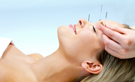 One or Two Acupuncture Face-Lifts with a Consultation at The Alive Academy (Up to 84% Off)