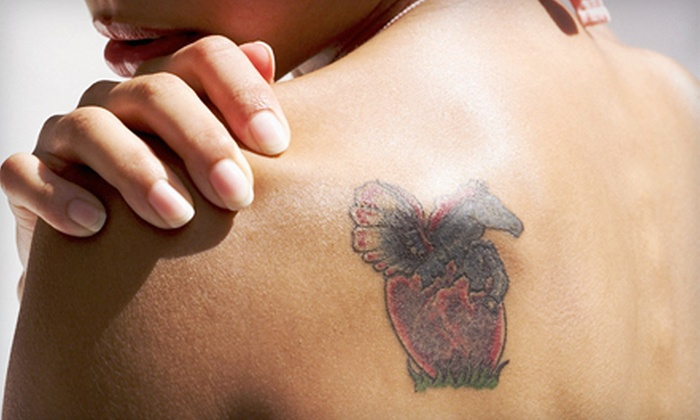 InkOff Laser Tattoo Removal - Kensington-Cedar Cottage: Three Laser Tattoo-Removal Sessions on Up to 3, 6, or 10 Square Inches at InkOff Laser Tattoo Removal (Up to 73% Off)