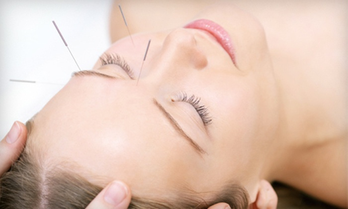 Chi Harmony Acupuncture - Back Bay: One Acupuncture Session or One or Three Facial Acupuncture Treatments at Chi Harmony Acupuncture (Up to 52% Off)