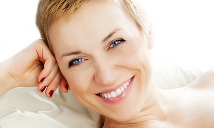 Three or Five Microdermabrasion Treatments by Darlene Harroun at Santoro Salon & Sanctuary (Up to 71% Off)
