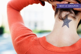Cosmetic and Vascular Suite: One Year of Laser Tattoo-Removal Sessions at Cosmetic & Vascular Suite NYC (Up to 71% Off)