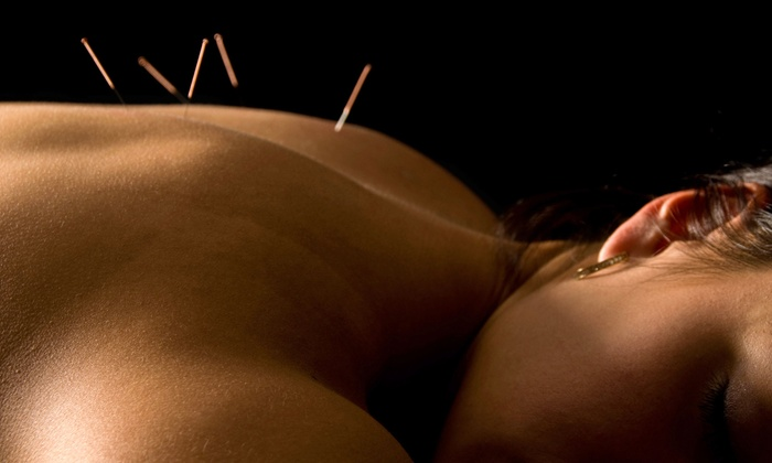 Dustin Siena, L.AC. - Camarillo: Private Acupuncture Packages from Dustin Siena, L.AC. (Up to 85% Off). Two Options Available.