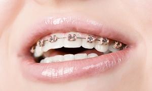 Klinika Stomatologiczno-Implantologiczna Miladent dr Dominik Łoś: Aparat ortodontyczny: 1 łuk stalowy (549 zł), samoligaturujący (949 zł) lub szafirowy (1699 zł) w Miladent w Gdańsku