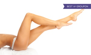 Laser & Organic Spa: Laser Hair-Removal for a Small, Medium, or Large Area at Laser & Organic Spa (Up to 86% Off)