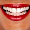 75% Off Teeth Whitening in Chesapeake