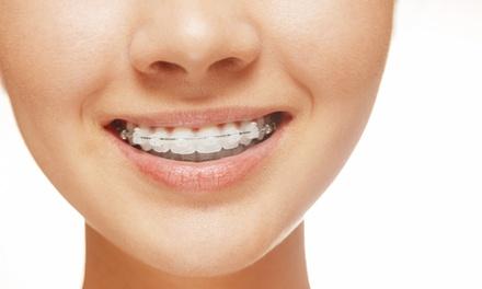 Ortodoncia con brackets metálicos o estéticos válida para los centros Torrent y Vigo desde 199 € en Integral Odonto