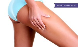 Cosmetic and Vascular Suite: One, Two, or Three Laser Stretch-Mark Removal Sessions at Cosmetic and Vascular Suite (Up to 87% Off)