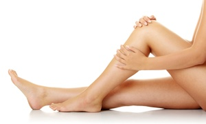 The Center for Plastic Surgery: Laser Hair Removal on a Small, Medium, Large, or Extra-Large Area at The Center for Plastic Surgery (Up to 90% Off)