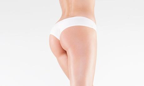Tratamiento corporal médico reafirmante con 10 o 20 hilos tensores desde 139 €