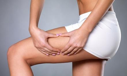 One, Three, or Five Cellulite-Reduction Endermologie Sessions at Glow Goddess (Up to 68% Off)