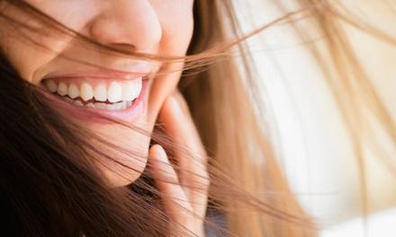 Home Teeth Whitening Trays