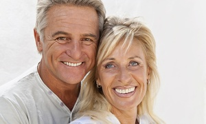 Stellar Smile: $39 for Teeth Whitening at Stellar Smile