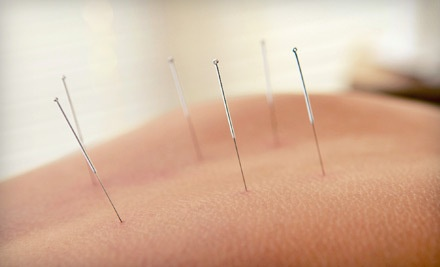 1 Acupuncture Treatment (a $142 value) - Whole Body Health And Wellness in Chicago