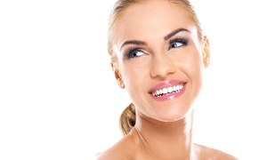 Dental Care London: Dental Care London: Six Month Smiles© Braces For Top or Bottom Arch for £699 (53% Off)