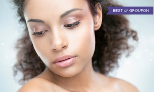 Lowcountry Plastic Surgery Center: Two or Three Laser Sun-Spot Removal Treatments at Lowcountry Plastic Surgery Center (Up to 87% Off)