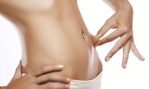 Arlington Cosmetic & Plastic Surgery-Anthony Tran M.D.,F.A.C.S,P.A.: $725 for $1,600 Worth of Sculpting Treatments