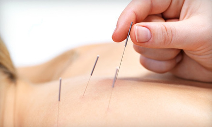David at Arcana Acupuncture  - Downtown,Willard Square: One, Three, or Six Acupuncture Sessions with Initial Consultation from David at Arcana Acupuncture (Up to 69% Off)