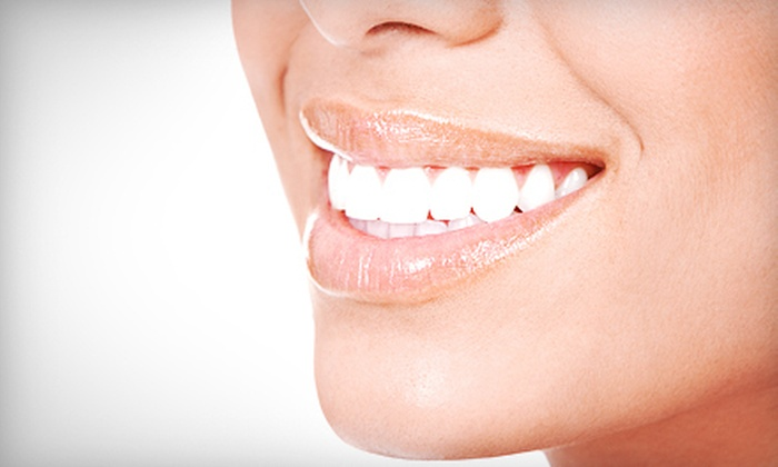 Gentle Hands Dentistry - Alhambra: Two, Four, or Six Porcelain Veneers at Gentle Hands Dentistry (Up to 62% Off)