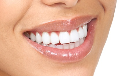 UberWhite In-Office Laser Teeth Whitening for One or Two at Smile High Facial and Dental Spa (Up to 80% Off)