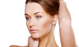 Rachel Med Spa: One or Two Microneedling Treatments at Rachel Med Spa (Up to 66%Off)