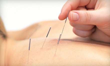 1 Acupuncture Treatment (a $150 value) - Benna Lun, ND  Acupuncture and Naturopathic Medicine in Niagara Falls