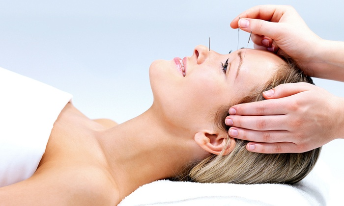 Rancho Eastern Medical Center - Rancho Cucamonga: One, Three, or Six Acupuncture Treatments at Rancho Eastern Medical Center (Up to 61% Off)