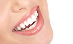 החיוך המושלם: מרפאת החיוך המושלם: הלבנת שיניים בטכנולוגיית LED ב-539 ₪ או בתוספת טיפול שיננית ב-639 ₪ בלבד. תקף גם בשישי ושבת