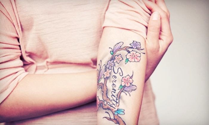 Dermatology Laser Center of San Diego - Central Chula Vista: Three Tattoo-Removal Sessions for Tattoos up to 9 Square Inches at Dermatology Laser Center of San Diego (Up to 79% Off)
