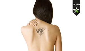 Studio Medico Estetico Dr.Turco: Fino a 5 sedute per la rimozione di macchie cutanee o tatuaggi