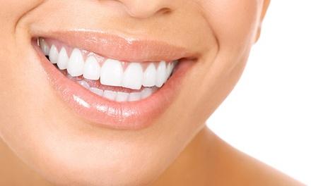 Pulizia denti e sbiancamento a 24,90€euro