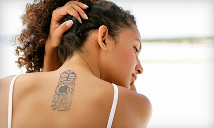 The Aesthetic Medicine and Anti-Aging Clinics of Louisiana - Baton Rouge: Tattoo Removal at The Aesthetic Medicine and Anti-Aging Clinics of Louisiana (Up to 81% Off). Three Options Available.
