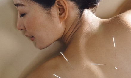 $31 for an Acupuncture and Cupping Treatment at The Qi Spot Acupuncture Clinic ($135 Value)